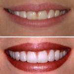 diş beyazlatma istanbul