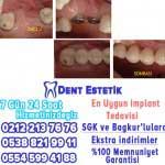 implant diş istanbul şişli