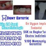 implant diş istanbul mecidiyeköy