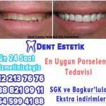 porselen diş istanbul şişli