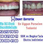 porselen diş istanbul beşiktaş
