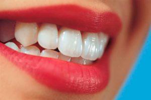 zirkonyum diş estetik diş