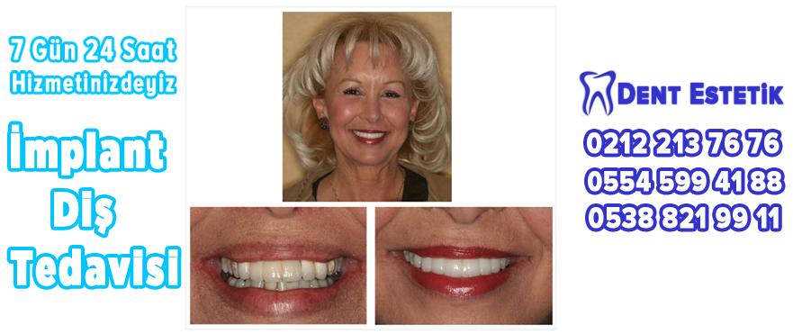 şişli implant diş