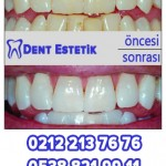 diş beyazlatma fiyatları