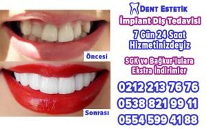 implant diş