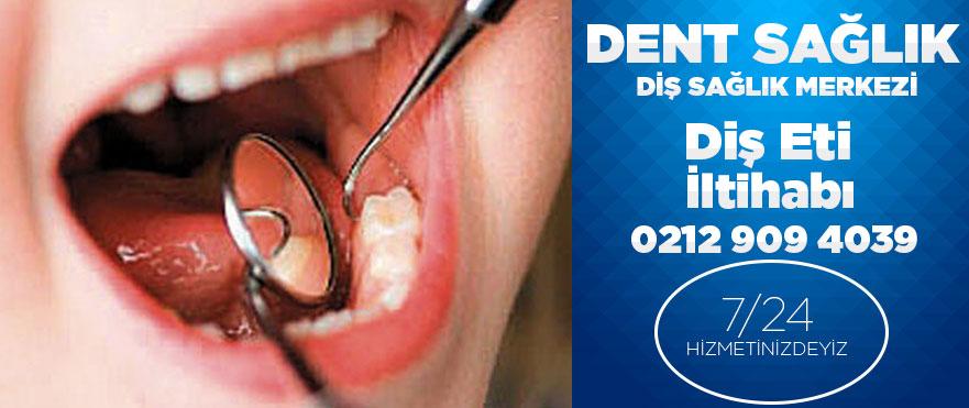 Diş Eti İltihabı tedavisi