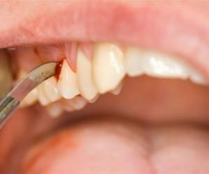 Diş Eti Kanaması önlemleri