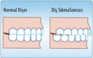 Diş Gıcırdatma tedavisi